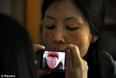 How healthy are you? You could soon find out by taking a snap of your tongue