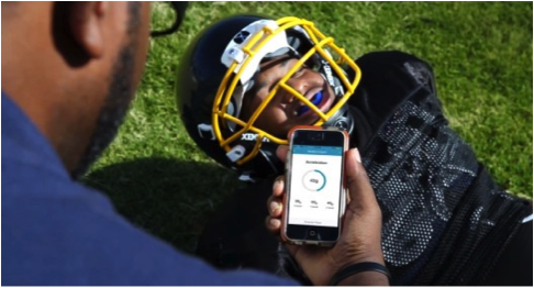 Fitguard Mouthpiece helps detect concussion in sport